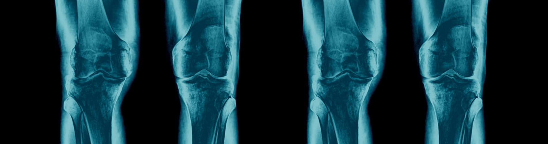 Approfondimento artrosi